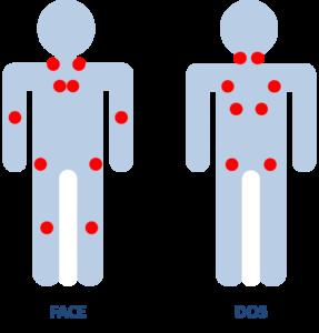 Les points de douleurs de la fibromyalgie