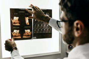 radiologie-malade-des-os-de-verre